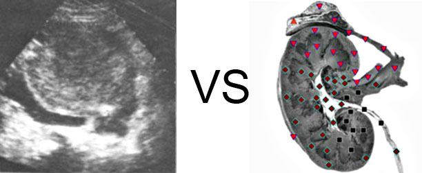 Comparison with ULTRASOUND STUDY 10