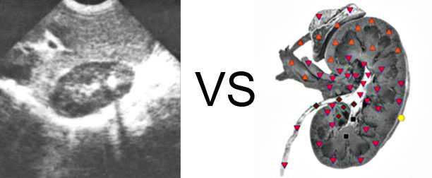 Comparison with ULTRASOUND STUDY 11