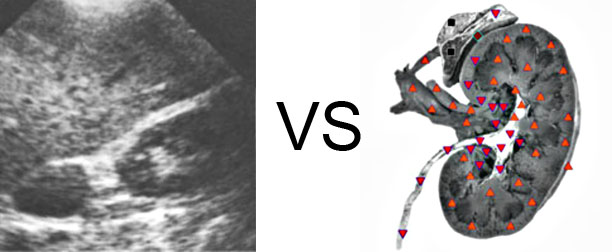 Comparison with ULTRASOUND STUDY 12