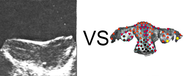 Comparison with ULTRASOUND STUDY 15