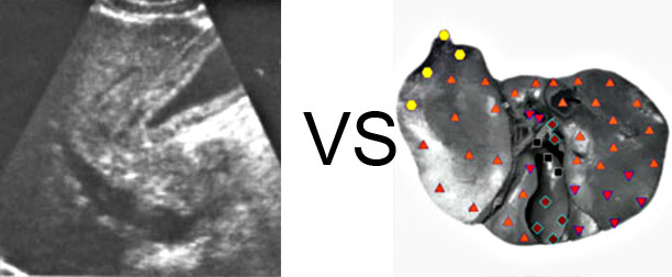 Comparison with ULTRASOUND STUDY 2