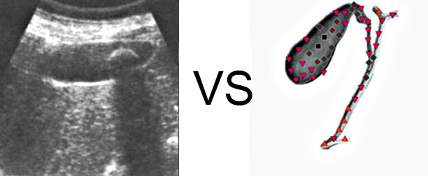Comparison with ULTRASOUND STUDY  5