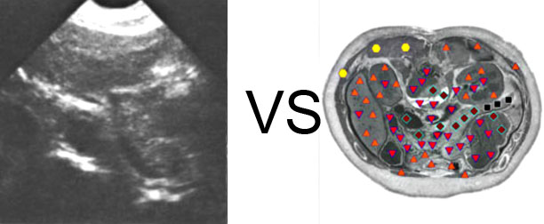 Comparison with ULTRASOUND STUDY 6