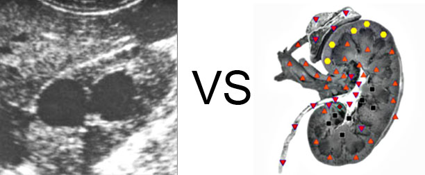 Comparison with ULTRASOUND STUDY 9