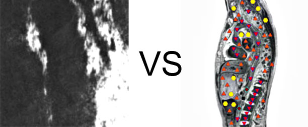 Comparison with ULTRASOUND STUDY
