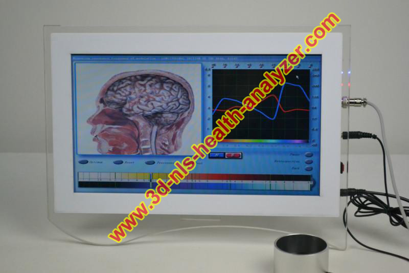 Professional 3D NLS health care diagnostic equipment touch screen