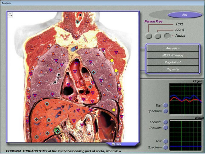 3d nls sub health analyzer
